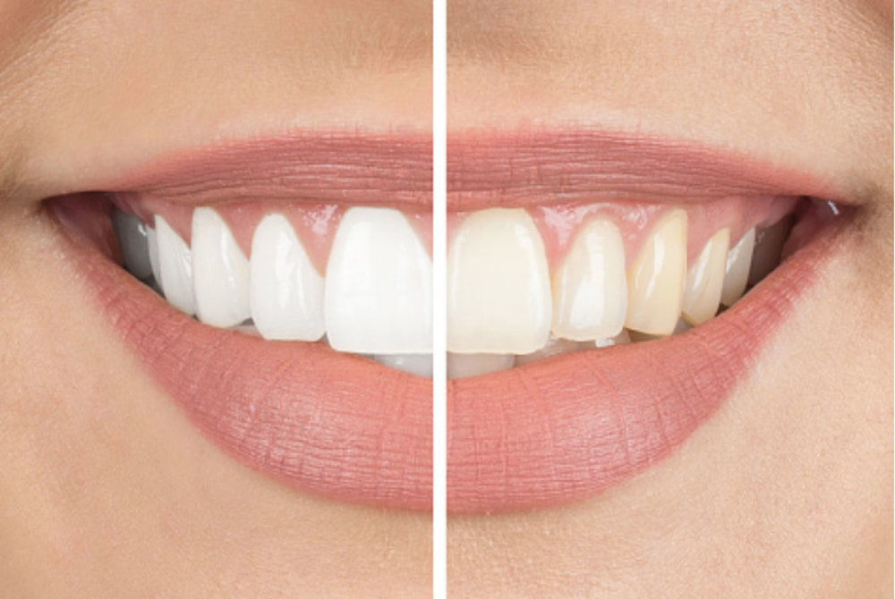 images_cosmetic-whitening.jpg