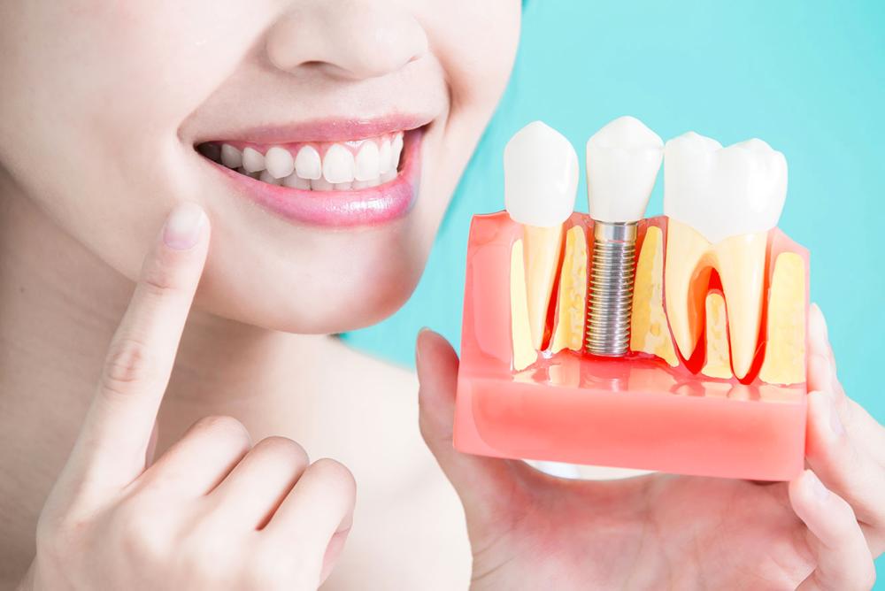 implants smile.jpg