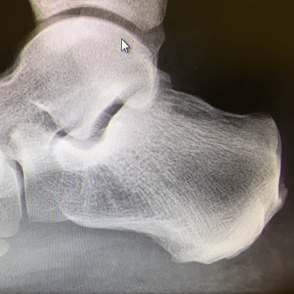 My heel