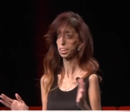 How do YOU Define Yourself (video) After viciously called 'the ugliest women' in the world, she courageously redefines herself in this TED talk.
