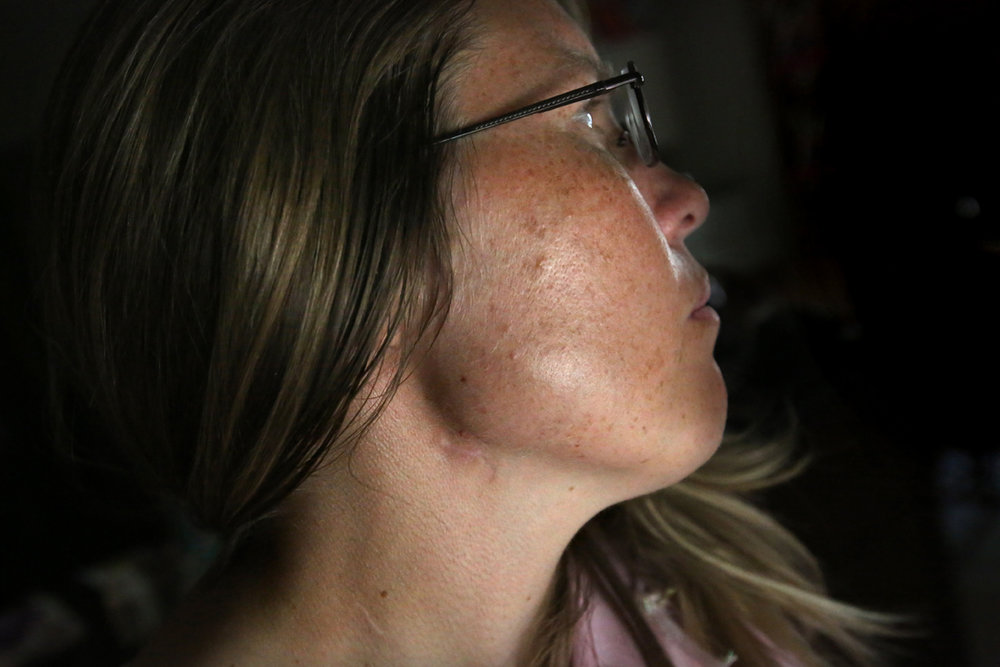 Josianne Thomas survived more than a dozen stab wounds, including two to the side of her neck, pictured, in the August 10, 2015, attack by Devonte Brown at her home in Toledo. Brown was the former boyfriend of Josianne's 16-year-old daughter Joscelyn who died as a result of the attack, along with Josianne's son Johnny Jones III, 14.