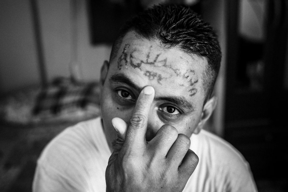 Jose Rolando, a former gang member, shows his tattoos being erased. He followed 34 laser sessions to remove the signs of this former belonging to the 18 gang in El Salvador.