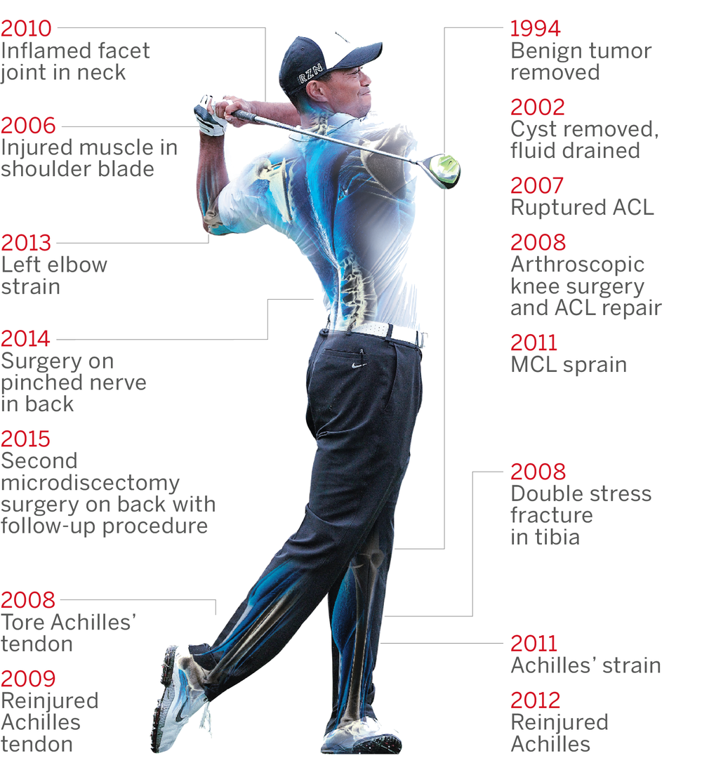 Image credit: https://abcnews.go.com | ABC News | Tiger Woods Injury Timeline
