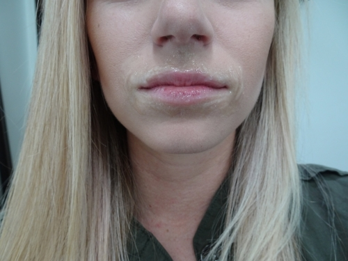 Lips before with numbing cream setting.
