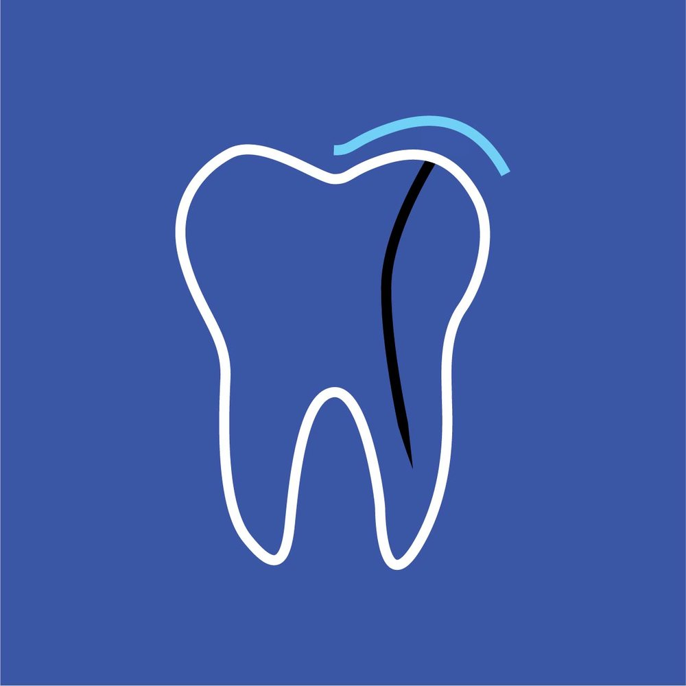 BD_111317_services_root canal.jpg