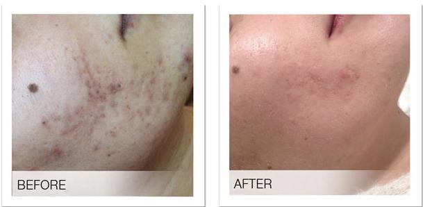 Before after SGA Treatments copy.jpg