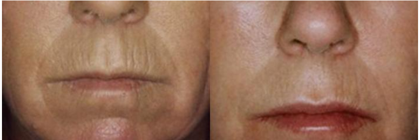 Collagen Induction Therapy pictures   Boston  MA   Patient 8911.png