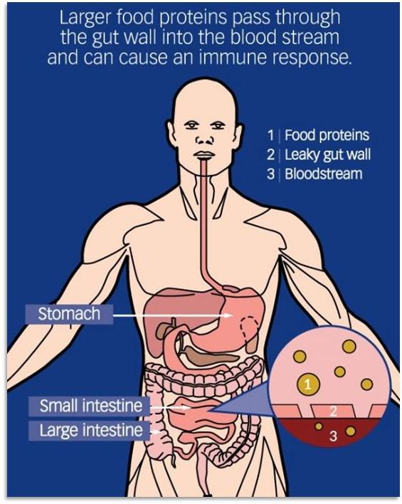 food intolerance image Ali Jones
