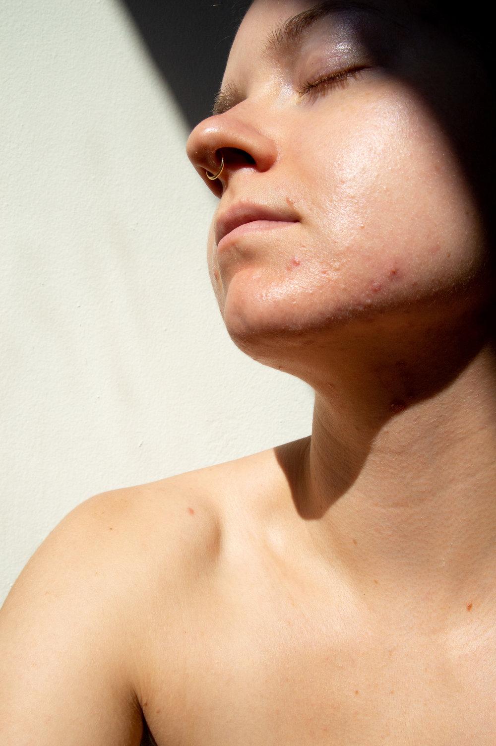 How I Treat Cystic Acne 2.jpg