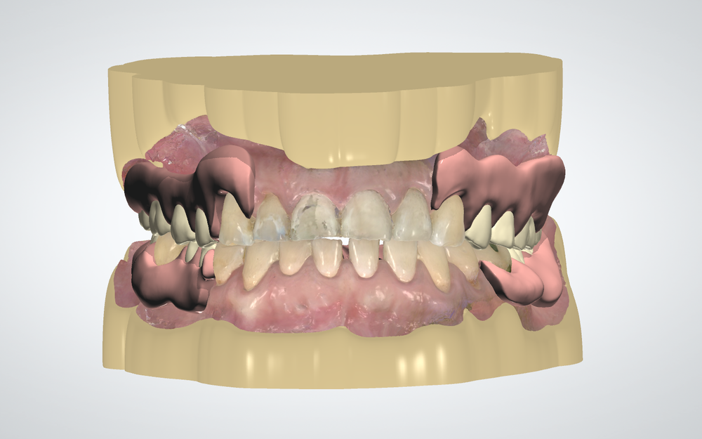 Valplast partial denture, designed with 3Shape Dental System from a TRIOS digital impression.