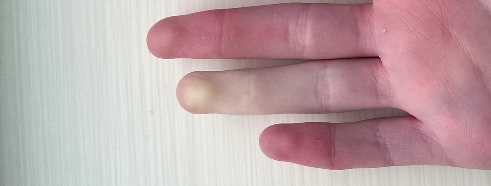Raynaud's Phenomenon—characterized by numbness, loss of blood flow, and atrophy of the fingers—is caused by dermal exposure to vinyl chloride. (image via Wikimedia Commons)