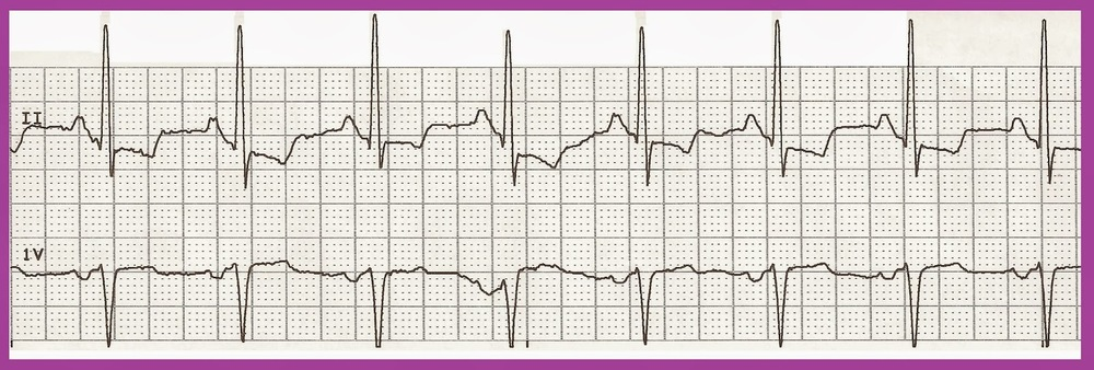 Normal sinus rhythm 02.jpg