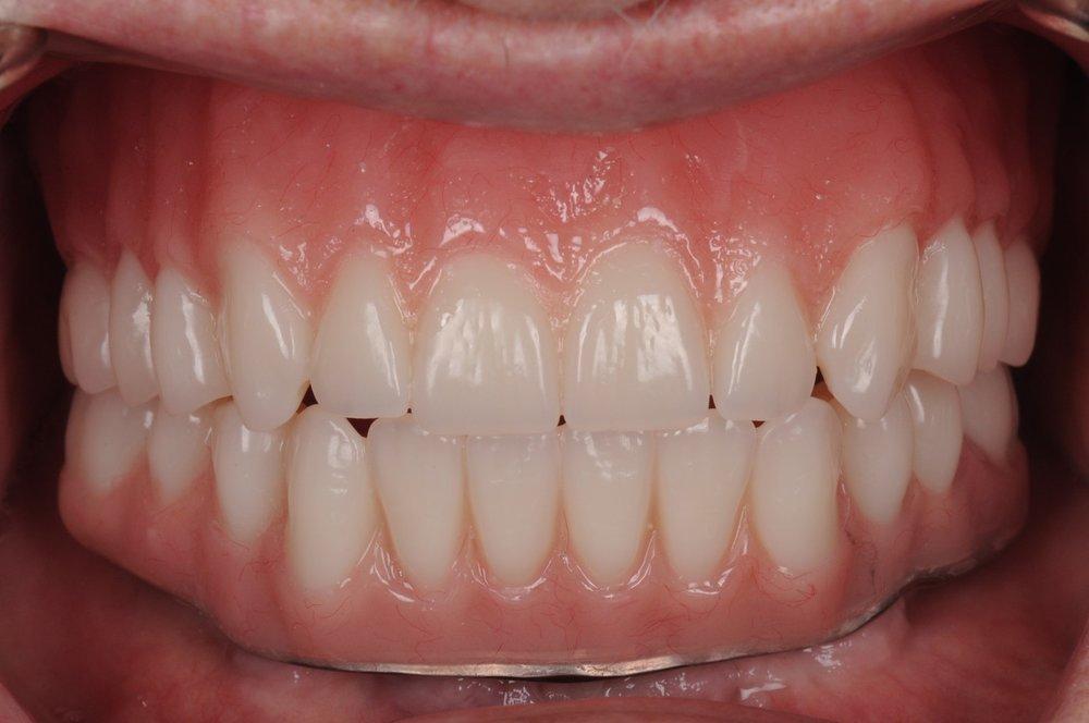 Case 3 - Final Teeth