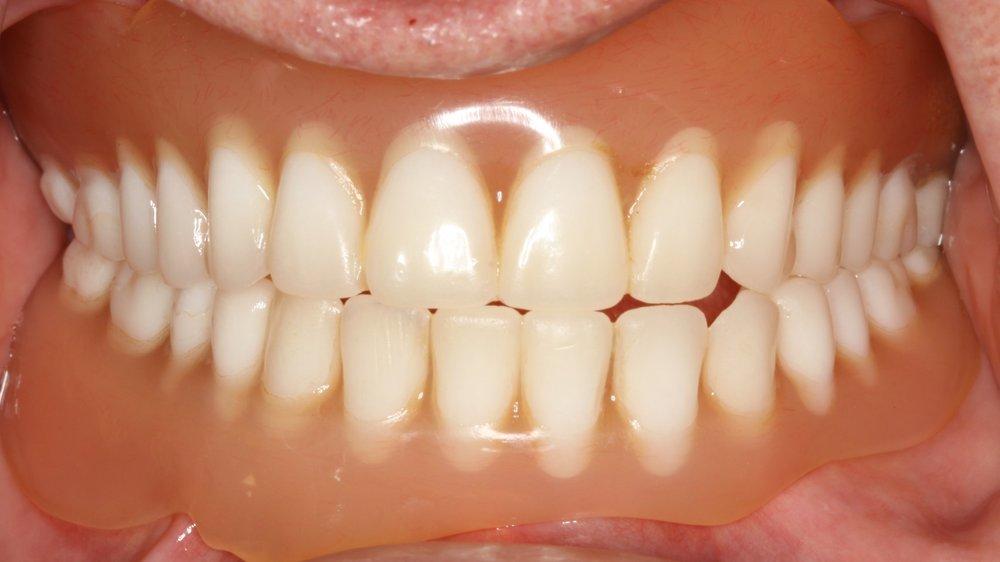 Case 3 - Before Dentures
