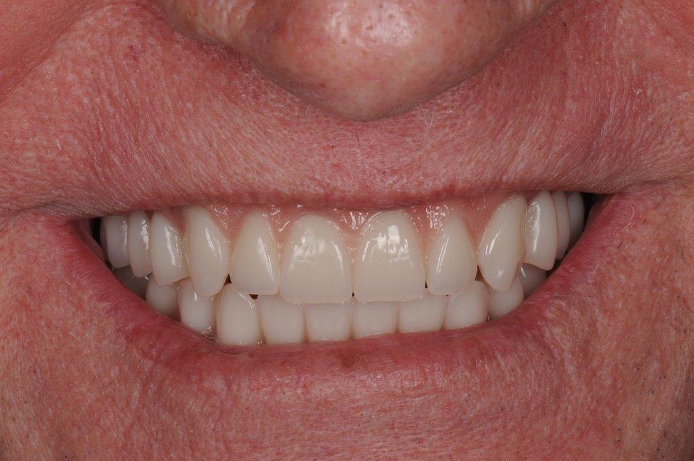 Case 3 - After Smile