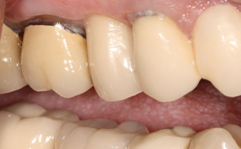 Case 1 - Final Crown Placed On Implant