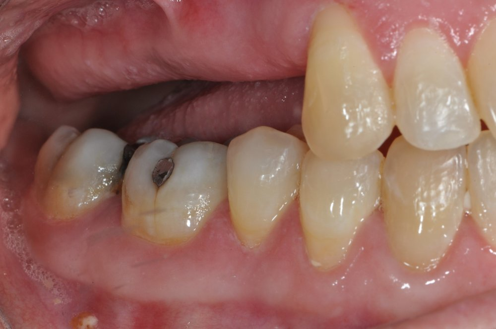 Case 2 - Multiple Missing Teeth