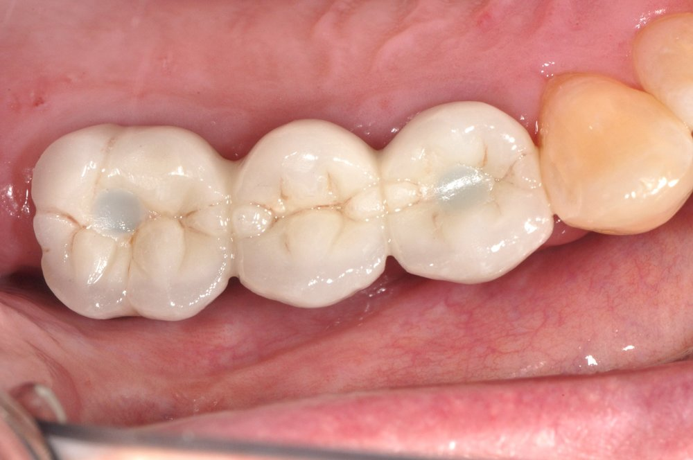 Case 2 - Top View of Implant Crowns