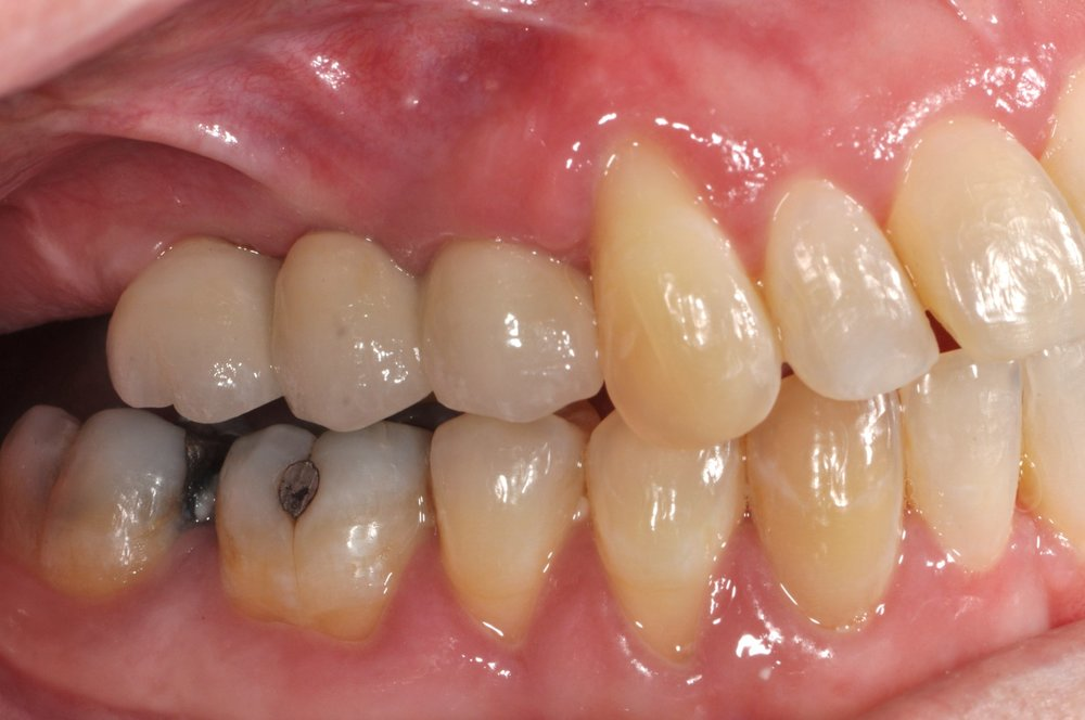 Case 2 - Multiple Crowns Attached to Implants