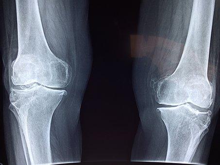 knee-2253047__340.jpg