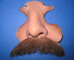 This is an example of restoring nose and upper lip area of a patient that lost part of his face due to cancer.