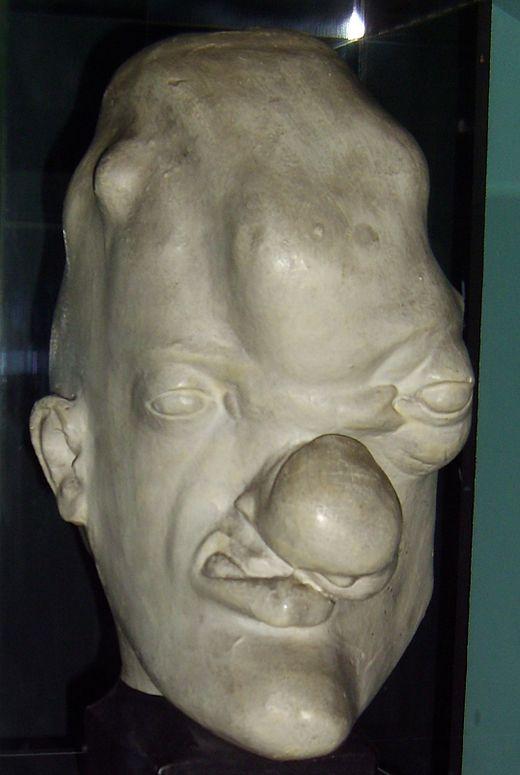 Person with tertiary (gummatous) syphilis. Bust in  Musée de l'Homme , Paris.