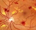 Renton Vision Clinic Diabetiic Retinopathy