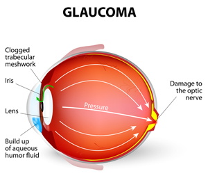Renton Vision Clinic Glaucoma