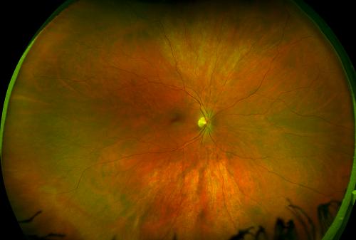 Renton Vision Clinic Healthy Retina Optomap.png