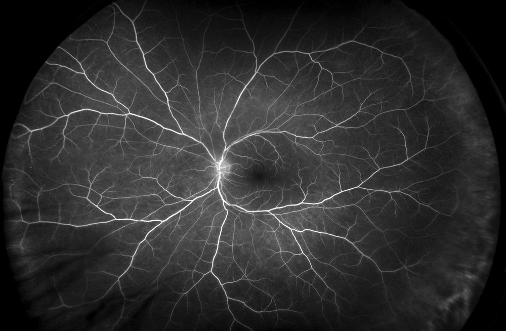 Renton Vision Clinic Optomap Choroiditis.jpg