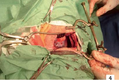 4. Chirurgie thoracique d'une tumeur pulmonaire. L'abord pulmonaire implique des lésions étagées et majeures concernant les côtes, les nerfs intercostaux, les articulations costotrans versaires, le plexus brachial, les muscles tels que le grand dorsal, le grand pectoral, le dentelé antérieur et intercostaux, susceptibles d'induire l'apparition de douleurs séquellaires neuropathiques.