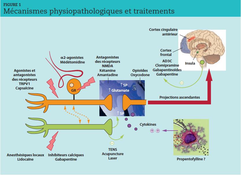 NMDA : N-méthyl-D-aspartate ; GR : ganglion rachidien ; SP : sensibilisation périphérique ; TENS :neurostimulation électrique transcutanée ;AD3C : antidépresseurs tricycliques.