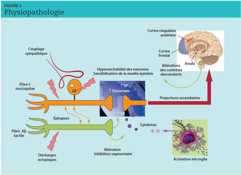 GR : gangion rachidien. ↑ : augmentation.Les lésions nerveuses induisent des modifications périphériques : décharges ectopiques au niveau des fibres C et Aβ, éphapses (connexions anormales entre deux axones). Des transformations phénotypiques modifient le métabolisme des fibres notamment Aβ qui synthétisent anormalement des peptides pronociceptifs (substance P [SP]). Cette suractivité à la fois électrique et chimique est à l'origine de modifications centrales, sources d'hyperexcitabilité durable :sensibilisation centrale, activation de la microglie, désinhibition segmentaire et altération des contrôles inhibiteurs descendants.