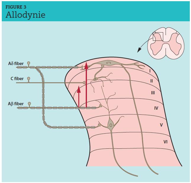 Les fibres tactiles Aβ, localisées dans les couches III et IV de la corne dorsale de la moelle épinière,peuvent, à la suite d'une lésion nerveuse périphérique, envoyer des collatérales dans les couches I et II et établir un contact synaptique avec les neurones de cette zone : l'information provenant des mécanorécepteurs des fibres Aβ est alors à l'origine d'un message douloureux (allodynie).