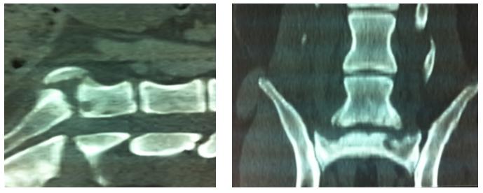 Lésions ostéolytiques de la 7ème vertèbre lombaire et du sacrum, en relation avec une spondylodiscite due à une infection par Staphylococcus intermedius (Labrador 8 ans)