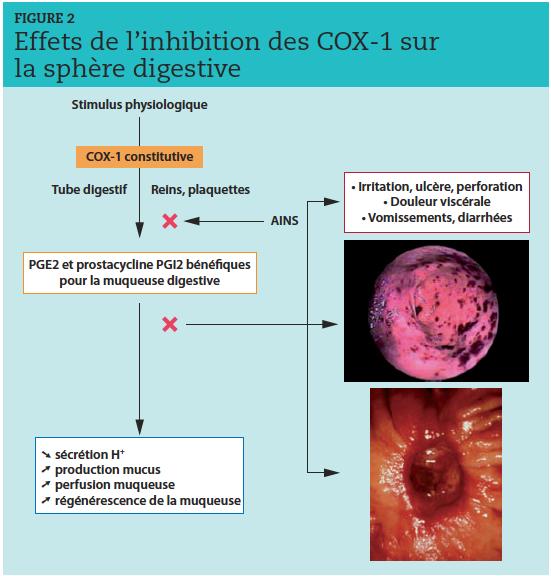 L'inhibition des COX-1 fragilise la muqueuse gastrique et peut provoquer des effets secondaires digestifs plus ou moins importants, allant de simples vomissements et diarrhées à un ulcère perforant. Ces complications sont variables selon les anti-inflammatoires non stéroïdiens (AINS) utilisés et fonction de leur ratio COX-1/COX-2. PGE2, PGI2 : prostaglandines.