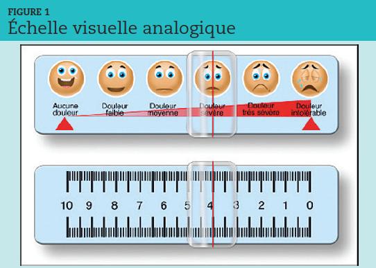 """L'échelle visuelle analogique (EVA) a la forme d'une réglette plastique de 10 cm dont la face illustrée est présentée au patient. Ce dernier déplace le curseur de gauche à droite selon l'intensité de la douleur ressentie : la traduction chi""""rée n'est lue que par le médecin évaluateur."""