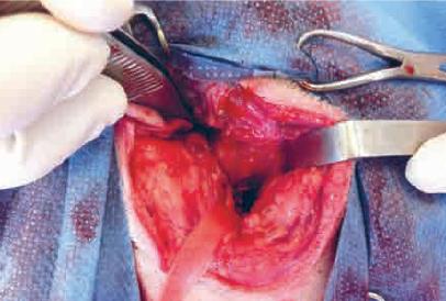 1. Visualisation de la bulle tympanique après ostectomie latérale. Le lac suspenseur isole le nerf facial.