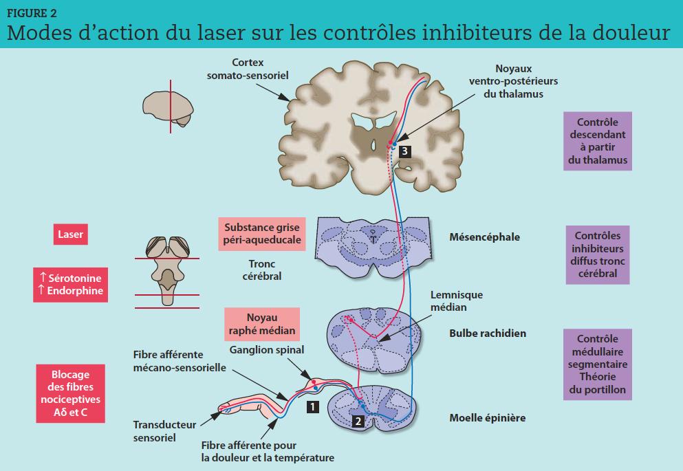 Les mécanismes de contrôle inhibiteurs viennent moduler le message nociceptif à l'étage médullaire (théorie du portillon de Melzack et Wall), au niveau du tronc cérébral (contrôles inhibiteurs diffus découverts par Le Bars) et à l'étage des centres supérieurs t (production chez l'homme d'une analgésie localisée ou diffuse selon les atteintes et le vécu de l'individu à partir d'activités cognitives).Le rayonnement laser, en bloquant les fibres nociceptives Aδ et C et en augmentant les taux de sérotonine et d'endorphines, renforce les contrôles inhibiteurs descendants, ralentissant, atténuant, voire supprimant le message douloureux.  1  ,  2  et  3  : corps cellulaires des neurones primaire (ganglion dorsal), secondaire (corne dorsale de la moelle épinière) et tertiaire (thalamus).