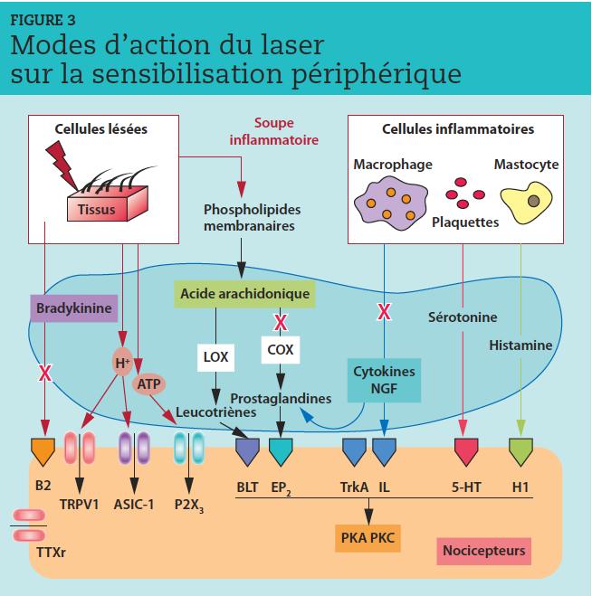 L'ensemble des médiateurs constitue une soupe inflammatoire riche d'ingrédients impliqués dans des cascades d'événements, se chevauchant, s'auto-entretenant pour installer un cercle vicieux de vasodilatation, d'inflammation et de douleur.  X  : le rayonnement laser s'oppose à l'état inflammatoire en réduisant les taux de bradykinine, de prostaglandines et de cytokines.