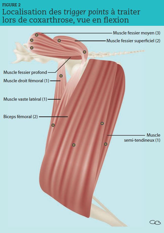 Entre parenthèses, le nombre de trigger points à traiter pour chacun des muscles concernés.