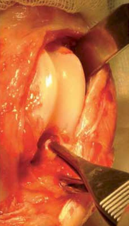 Photos 4  Aspect de grassets au cours de chirurgies réparatrices de la rupture du ligament croisé antérieur.