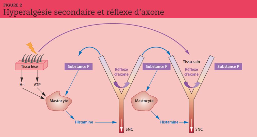 Les potentiels d'action engendrés par l'activation des nocicepteurs se propagent vers la moelle (conduction orthodromique), mais également vers la périphérie via les réflexes d'axone. La sécrétion de substance P, de CGRP (calcitonin gene-related peptide) et de neurokinine A est responsable d'une nouvelle stimulation des récepteurs. Par l'intermédiaire de son récepteur spécifique NK1, la substance P est directement responsable, non seulement d'une vasodilatation et d'une augmentation de la perméabilité vasculaire, mais aussi d'une dégranulation des mastocytes et de la libération d'histamine.SNC : système nerveux central. ATP : adénosine triphosphate.