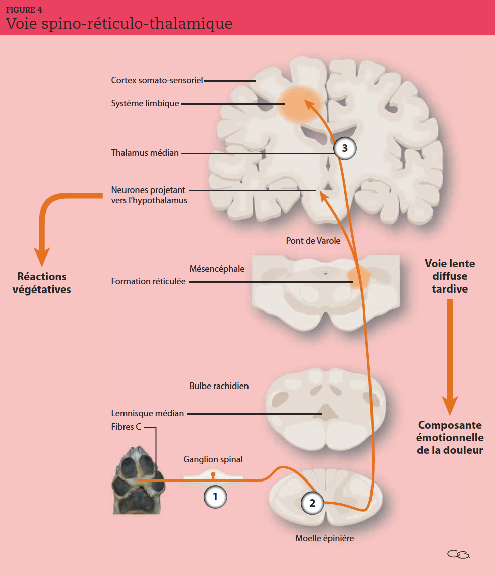 Une lésion du côté gauche de la moelle épinière sous le tronc cérébral fait perdre la sensation du toucher et perdurer la douleur dans la partie homolatérale du corps. Elle conserve la sensation de la partie droite du corps, mais fait disparaître sa douleur. ➘ : diminution.