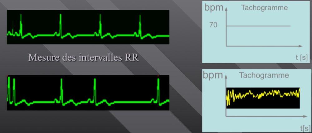 Le tracé de l'évolution du rythme cardiaque est un tachogramme: Si le rythme cardiaque est parfaitement régulier, le tachogramme est plat. Si le rythme cardiaque est irrégulier, le tachogramme montre des oscillations.