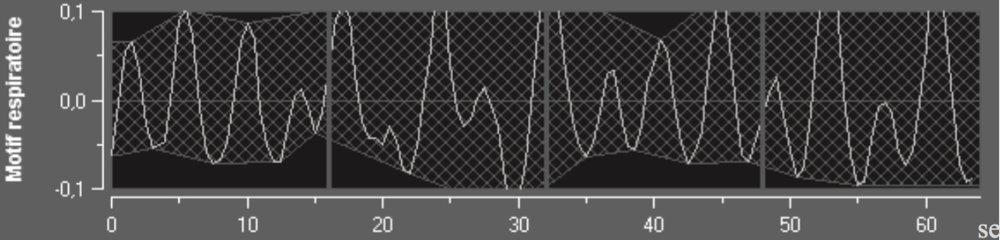 """4    Le calcul de l'index PTA  (Parasympathic Tone Activity) est basé sur le rapport de la surface des """"motifs respiratoires"""" de la variabilité de l'intervalle R-R par rapport à sa valeur moyenne.    La composante PΣ est évaluée après filtrage, normalisation et ré-échantillonnage de la série R-R, en mesurant la surface générée par les cycles respiratoires sur le périodogramme. Plus le tonus PΣ est important, plus la surface mesurée est grande. A l'inverse la surface mesurée diminue lorsque le tonus PΣ diminue.  Le PTA est exprimé sous forme d'un indice s'échelonnant de 0 à 100.  Cet indice reflète l'activité du système nerveux parasympathique. Il exprime la quantité relative de tonus PΣ présent par rapport au tonus sympathique (Σ ) dans le SNA du sujet. La mesure affichée du PTA représente la moyenne d'une succession de mesures : chaque mesure élémentaire est réalisée sur 64 secondes, avec 1seconde de fenêtre glissante.  En l'absence de stimulus douloureux et de stress, seule l'arythmie sinusale respiratoire influence la série RR et la surface du motif respiratoire ainsi que l'index PTA sont élevés."""