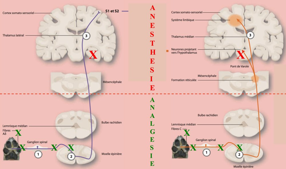 ☞L'Analgésie vise à diminuer les influx nociceptifs    (transduction et propagation) et à accroitre la modulation spinale