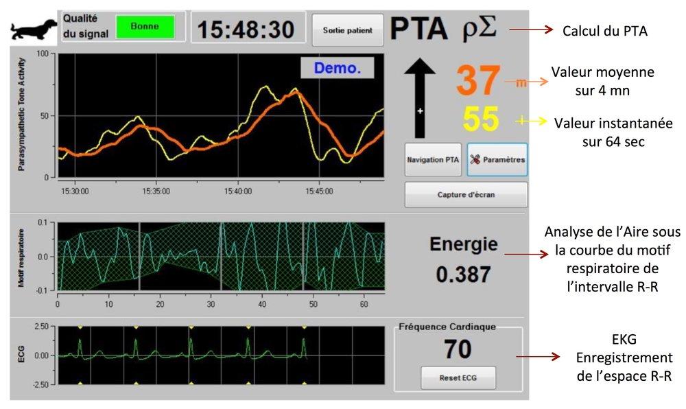 L'indice   Energie   correspond à la puissance spectrale totale du SNA. Lorsque la valeur de   l'indice   Energie   varie brutalement, cela signifie que le PTA   calculé à ce moment précis n'est   pas significatif de la valeur du tonus parasympathique    du patient. L'indice   Energie   ne renvoie en aucun cas à   une notion d'énergie du patient ou du système   nerveux parasympathique mais à une norme du signal ECG acquis par le moniteur PTA.   Lorsque l'utilisateur appuie sur «   Capture d'écran   », les informations affichées à l'écran sont enregistrées sous format image dans la mémoire interne du moniteur. Pour récupérer ces images, il faut insérer une clé USB dans l  'un des ports USB  . Ensuite sélectionner «   Sortie patient   » en haut de   l'écran. Dans la nouvelle fenêtre qui s'affiche   , choisir «   Exporter   ». Les images seront enregistrées dans un fichier. Le nom du fichier répond à la logique suivante : Heure - minute - mois - jour - année.