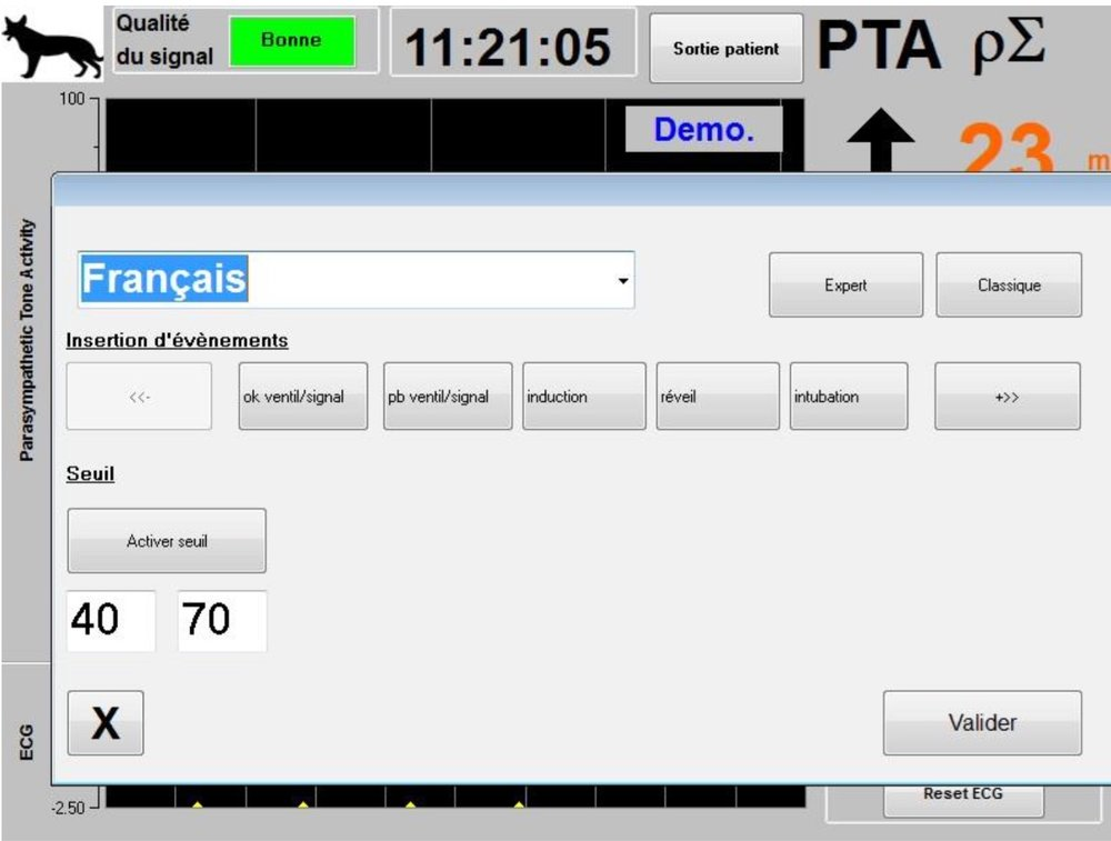 La fenêtre «   Paramètres   » affiche alors les valeurs seuils choisies. Cliquer sur «   Valider   » pour activer le choix.