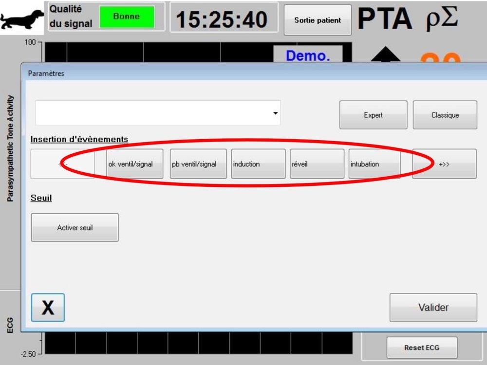 C'est dans ce menu qu'il est possible d'insérer   des   événements cliniques afin qu'ils soient notifiés dans les courbes de tendances et dans les   données exportables.    Appuyer sur l'un de ces boutons insèrera une marque sur la courbe   PTA et dans le fichier   d'enregistrement de la série R  -R.   L'insertion d'un   événement entraine automatiquement leur mémorisation dans le fichier type « Index   », fichier qu'il est possible de récupérer via une cl  é USB.